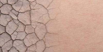 Pourquoi j'ai la peau sèche : les principales causes